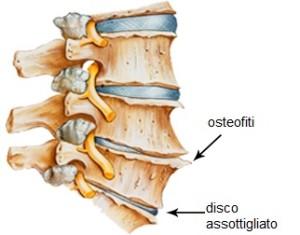 osteofiti sprain strain
