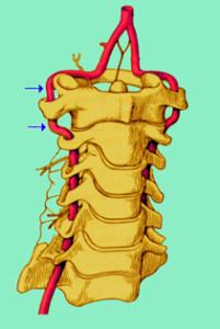 sovradistensione-vertebrale