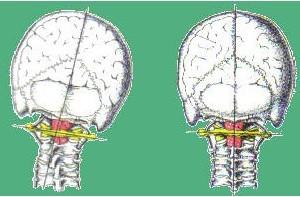 squilibrio-cervicale