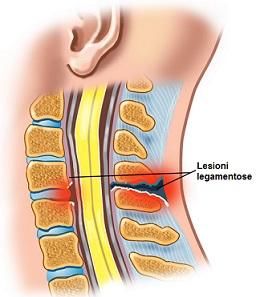 lesione legamento osteopatia